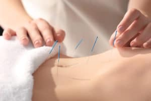 acupuncture for pre-menstrual syndromes and pain pariod