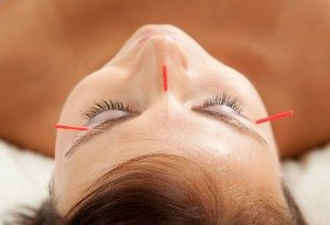 Facial rejuvenation by acupuncture