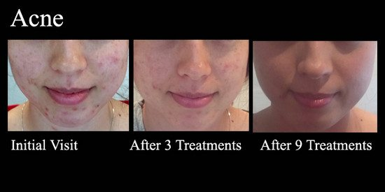 Acupuncture cystic acne treatment