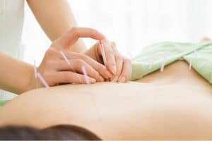 city acupuncture for cancer support and pain relief
