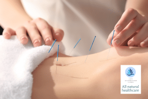 PMS treatment by acupuncture