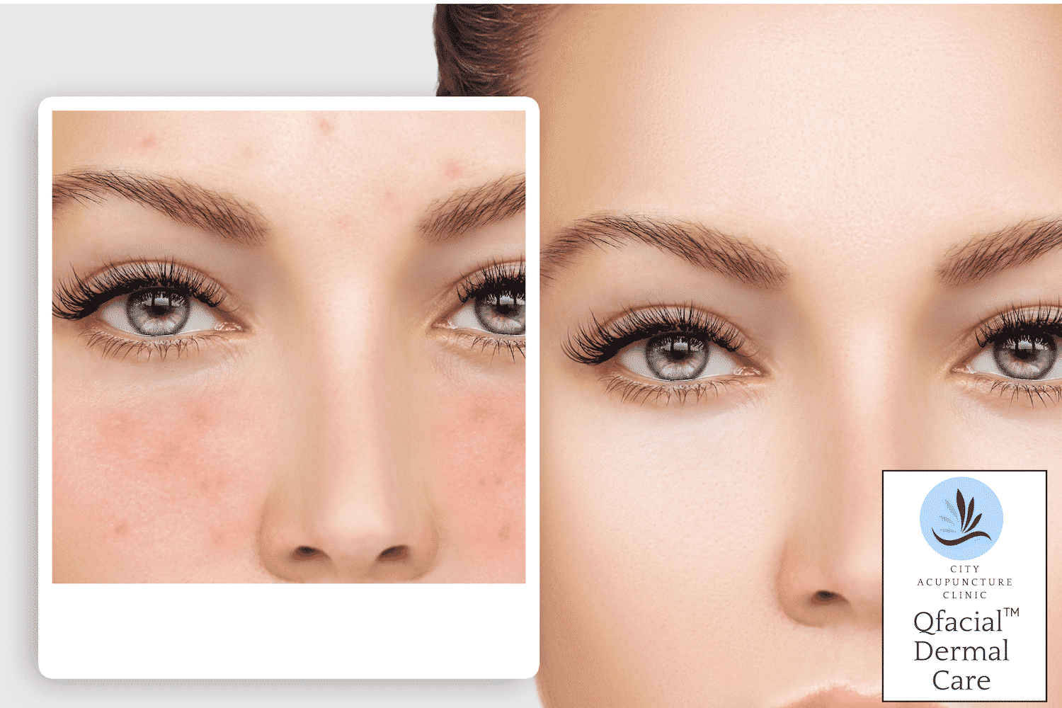City Acupuncture Adelaide Clinic Facial compare with before and after acupuncture treatment